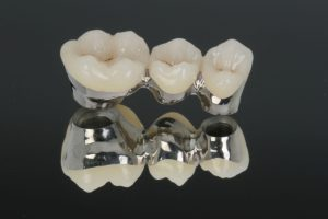 Implantes dentales con base de paladio