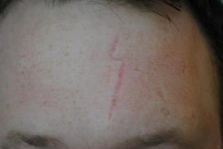 before scar treatment