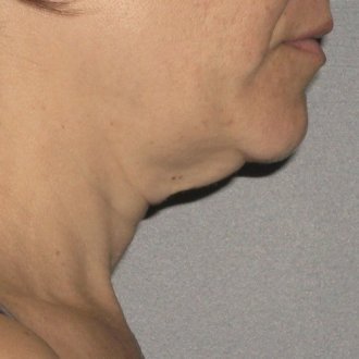 Ultherapy Neck Before