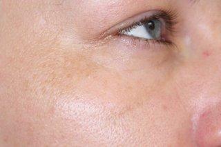 after etwo eye rejuvenation