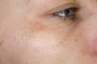 before etwo eye rejuvenation