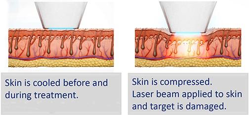 chilltip laser