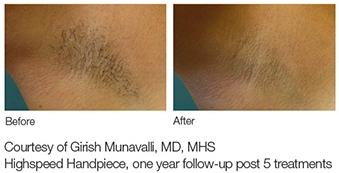 lumenis lightsheer laser hair removal