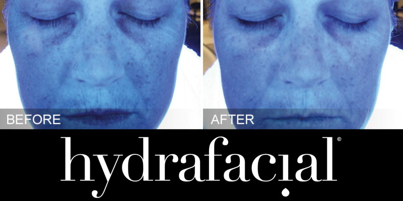 HydraFacial Hydration