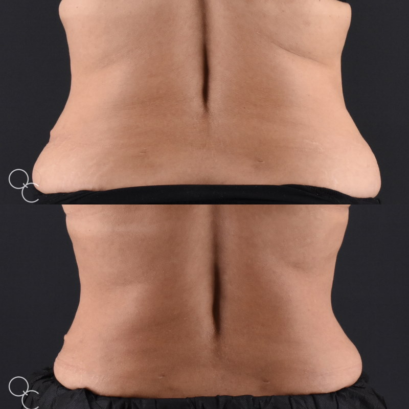 Coolsculpting flanks results