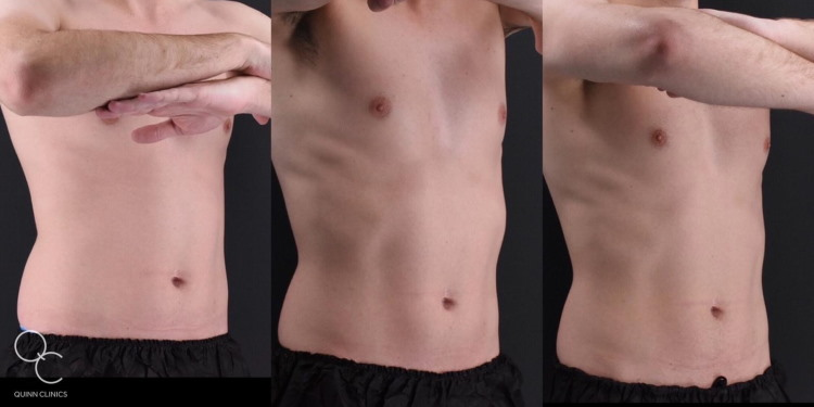Emsculpt male before and after