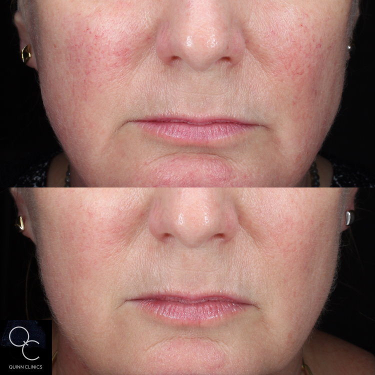 Rosacea thread veins treatment