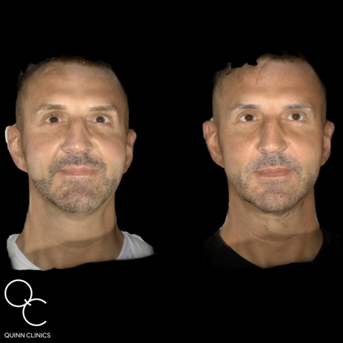 Male Dermal Fillers, Before & After Results