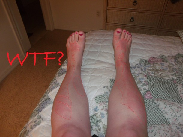 Ridiculous sunburn