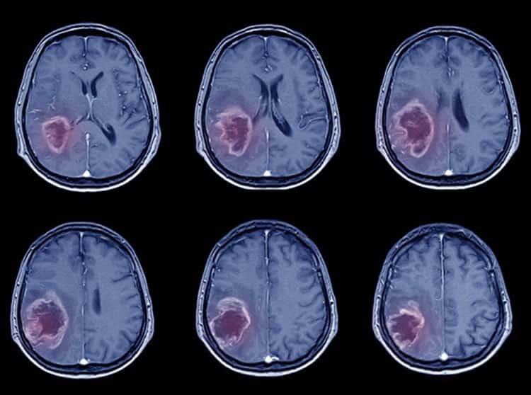 Cerebro Cuagulos