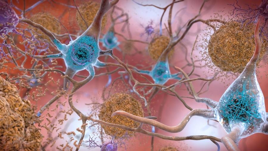 Alzheimer: un potenziale farmaco
