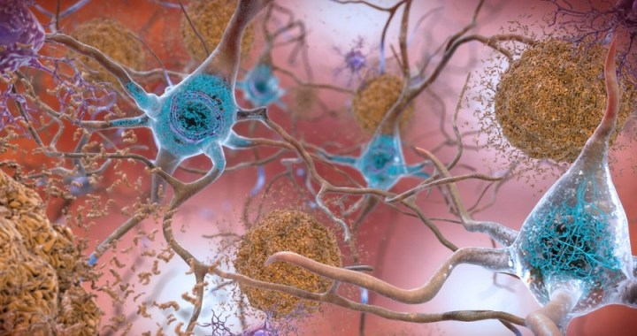 Alzheimer: un potenziale farmaco sperimentale