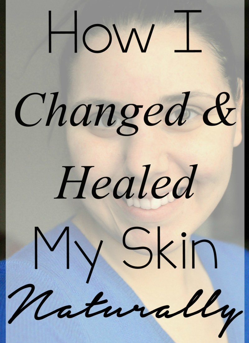 How I Changed and Healed My Skin Naturally!