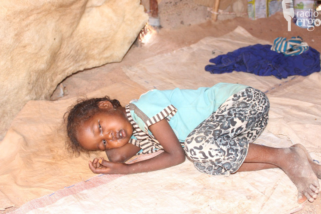 Villagers in remote part of northern Somalia relying on traditional remedies in measles outbreak