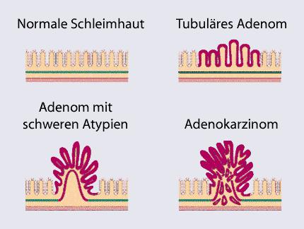 Adenom-Karzinom-Sequenz. User:Doktor silke / Wikimedia Commons, GFDL/CC-by-SA 3.0