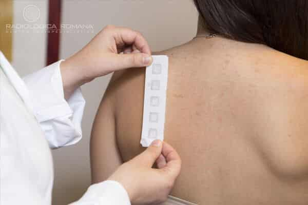 patch-test-roma-allergologia.jpg?fit=600%2C400&ssl=1