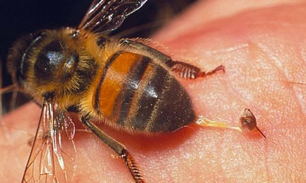 Bombeiros orientam sobre cuidados em relação a picadas de abelhas e vespas