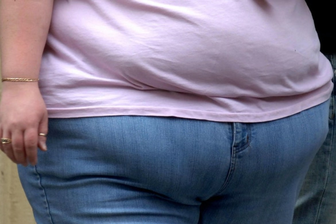 Higher BMI in early adulthood linked to increased dementia risk – study