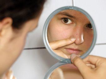 Ocho remedios caseros para el acné