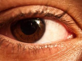 Glaucoma,
