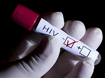 Las únicas vías por las cuales se puede transmitir el VIH son: 1) A través de relaciones sexuales sin condón .2) Contacto con sangre.3) De la madre embarazada a su hijo.