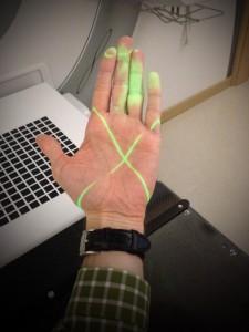 positionnement par laser vert