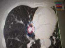 radiation therapy plan