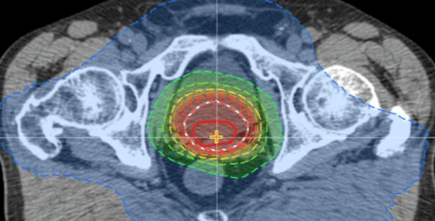 radiotherapie prostatique