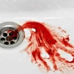 DANGER: Les dentistes alertent sur les gencives qui saignent