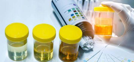 尿液中的蛋白质是需要详细诊断的强大症状。