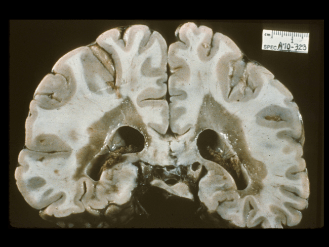 Multiple sclerosis, gross: Classic multiple sclerosis (Charcot-type) grossly shows well-demarcated tan-gray patches of demyelination. Plaques are often present adjacent to the lateral angles of the lateral ventricles (pictured), optic nerves, floor of the fourth ventricle, brain stem and spinal cord. They may vary in shape, number and distribution and can occur anywhere in white matter, at gray-white junctions or even within cortical/deep gray matter.