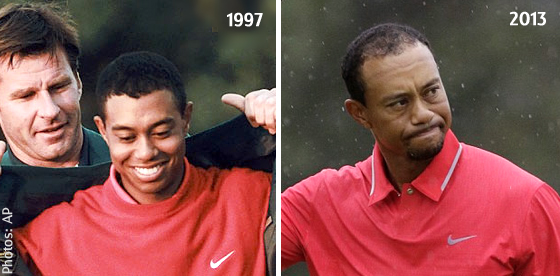 Does Tiger Woods Losing His Hair Mean Time For Surgery