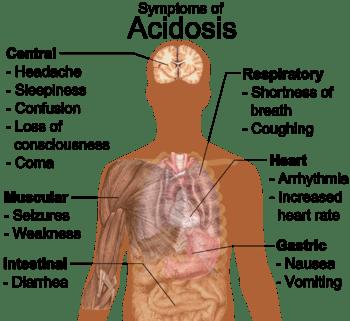 English: General symptoms of acidosis. (See al...