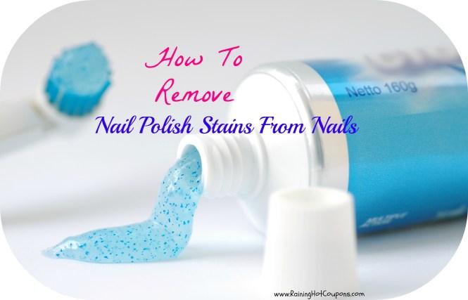 White Dots On Toenails After Pedicure Nails Art Ideas