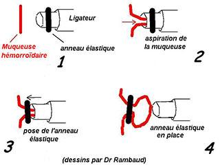 principe de la ligature elastique