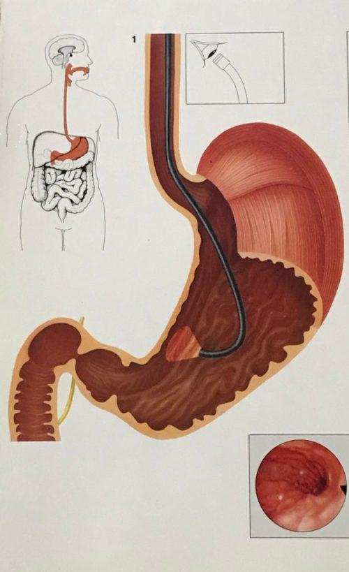 Observation de l'intérieur de l'œsophage, de l'estomac et du duodénum