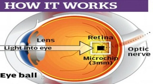Bionic Contact Lens - Future Innovations