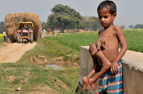 Indian Boy With Extra Limbs