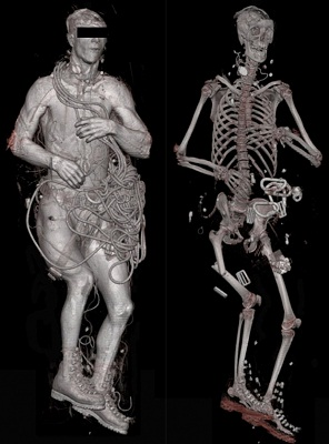 Digital Autopsy