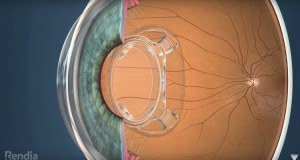 Bionic Lens Could Make Vision 3 Times