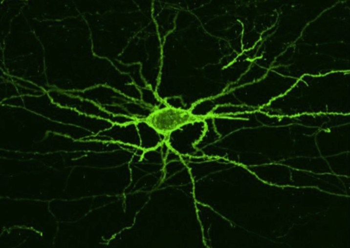 Measuring Brain's Electrical Activity