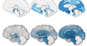Simulations For Neurodegenerative Diseases
