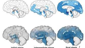 Simulations For Neurodegenerative Diseases