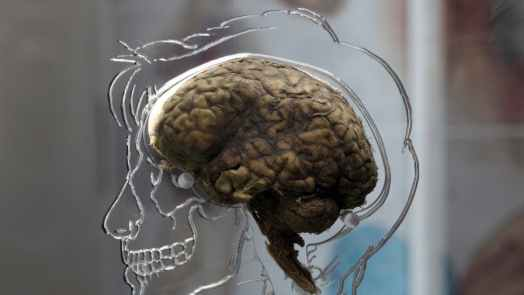 obesity could damage the brain