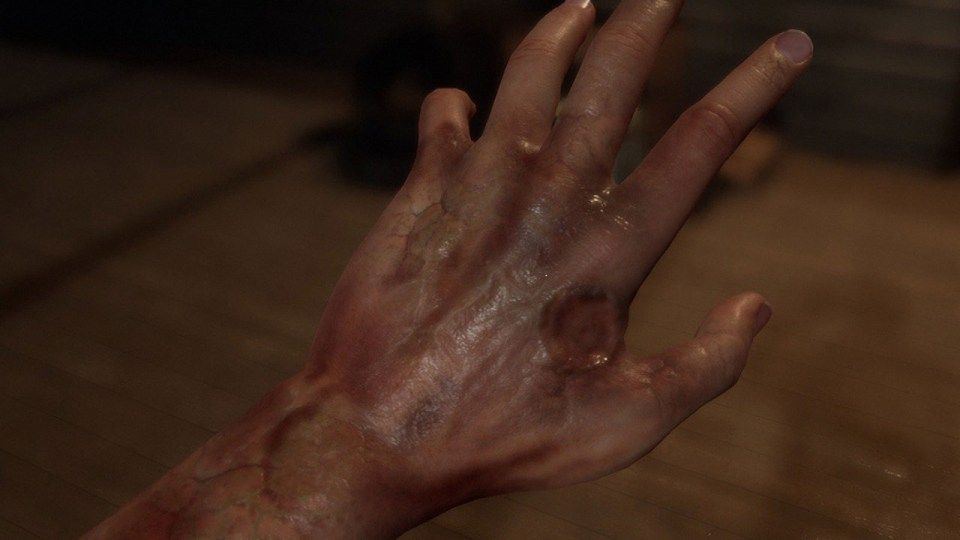 A hand injured with a burn mark.  Horror Story: Hallowseed Early Access Review on PC