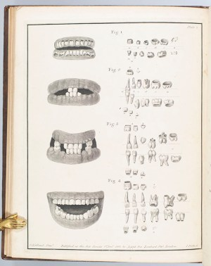 The Natural History of the Human Teeth. Including a Particular Elucidation of the Changes Which Take Place During the Second Dentition, and Describing the Proper Mode of Treatment to Prevent Irregularities of the Teeth. To Which is Added, an Account of the Diseases Which Affect Children During the First Dentition.