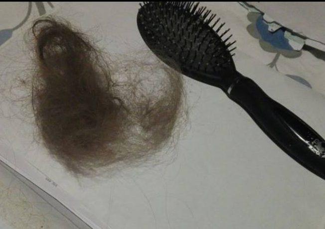 Lukijan kuva hiusten lähdöstä