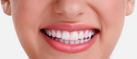 Estética Dental Madrid Raúl Cortez tratamientos dentales