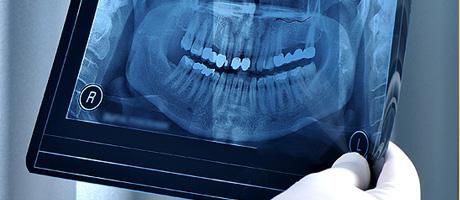 Prótesis dentales en Raúl Cortez