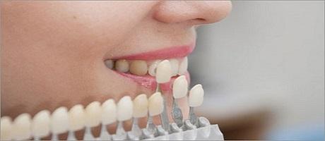 Carillas dentales Madrid para mejorar la estética de tus dientes Raúl Cortez